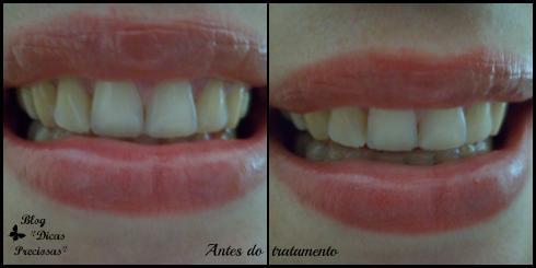 antes tratamento